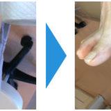 爪のクリーニング画像12