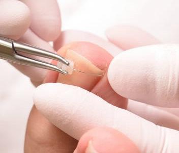 巻き爪ケア・原因と予防法