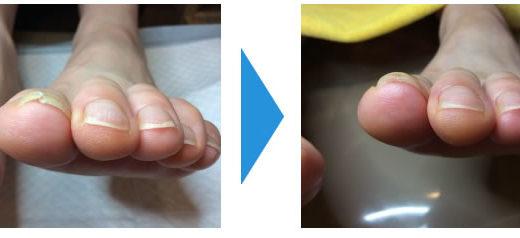 亀裂が常にある母趾のケア