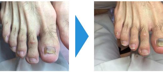 肥厚爪ケアの事例26