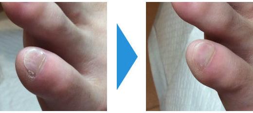 小指の爪が常に割れてささくれ状になる