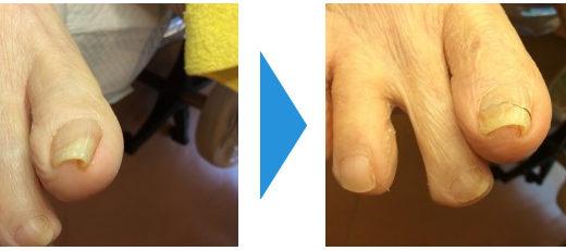 巻き爪の施術例9