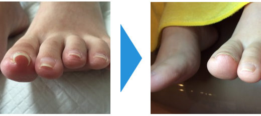 巻き爪の施術例10