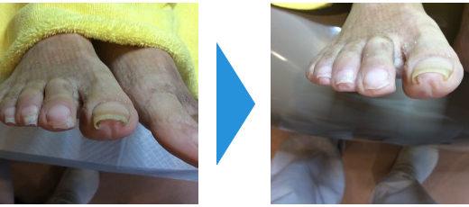 爪切りケアの事例