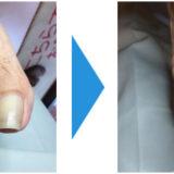 爪切り&クリーニング画像01