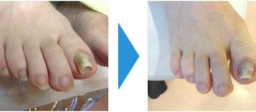 爪切りの施術例4