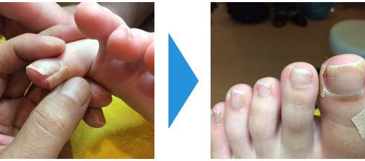 爪切りケアの事例6
