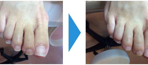爪切りケアの事例7