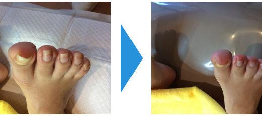 爪切りの施術例8