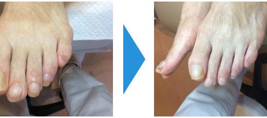 爪切りケアの事例10