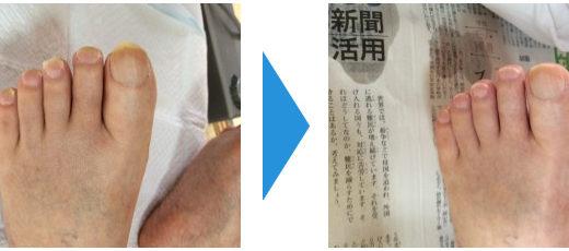 爪切りケアの事例11