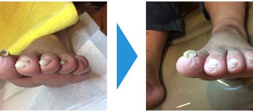 爪切りの施術例13