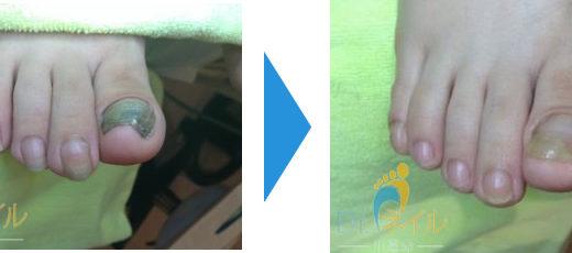肥厚爪ケアの事例1