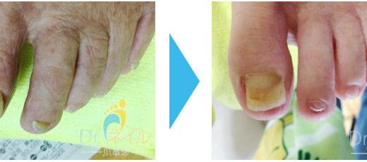 肥厚爪ケアの事例2