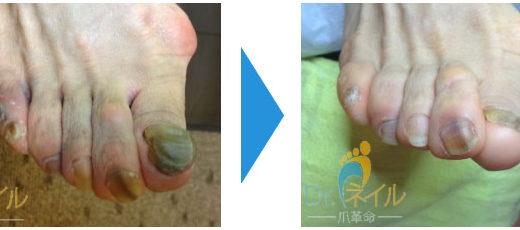 肥厚爪ケアの事例3