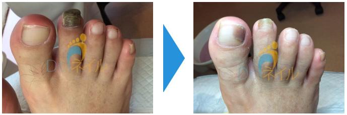 中指の爪が厚くなり黒く変色