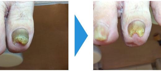 肥厚爪ケアの事例12