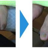 肥厚爪(爪が分厚くなった)画像16