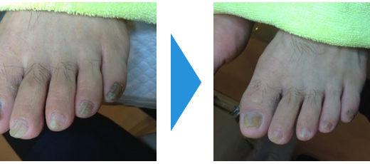 肥厚爪ケアの事例16