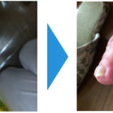 肥厚爪(爪が分厚くなった)画像17