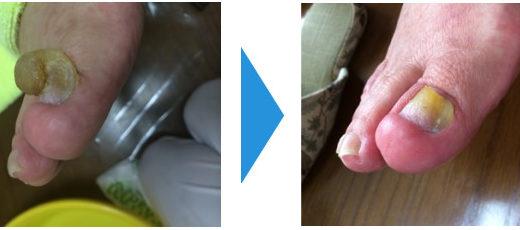 肥厚爪ケアの事例17