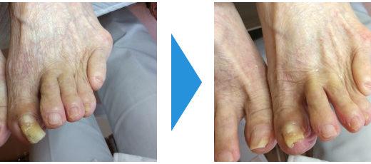 肥厚爪ケアの事例22