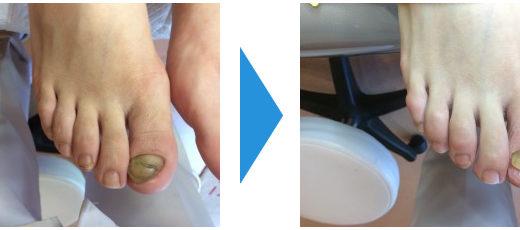 肥厚爪ケアの事例25