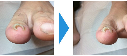 巻き爪の施術例4