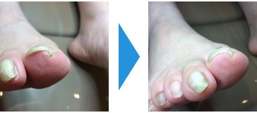 巻き爪の施術例8