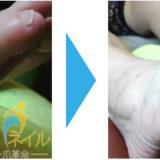 足にできたタコ(角質)が綺麗になった画像03