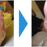 足にできたタコ(角質)が綺麗になった画像05