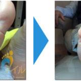 足にできたタコ(角質)が綺麗になった画像06