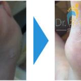 足にできたタコ(角質)が綺麗になった画像01