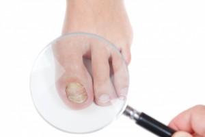 4割以上が巻き爪の予防方法について「分からない」と回答