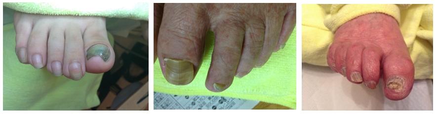 肥厚爪の症例画像3つ