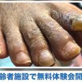 v01凄い肥厚爪で悩む方へ