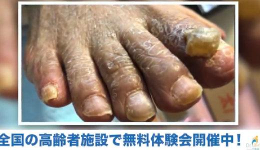 動画紹介「凄い肥厚爪のケア」高齢者に多い爪の悩み