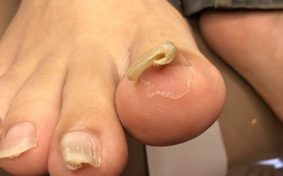 Ingrown toenails(mens entry)