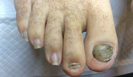 肥厚爪ケアの事例27