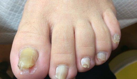肥厚爪ケアの事例28