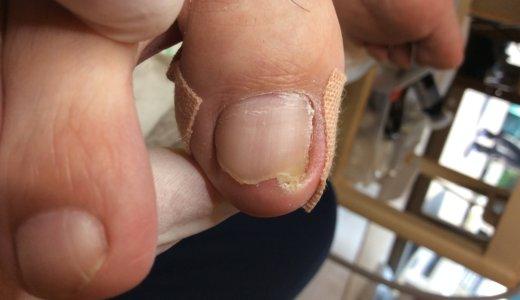 巻き爪ケアの事例11 (深爪)