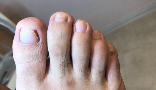 巻き爪ケアの事例12 (深爪)