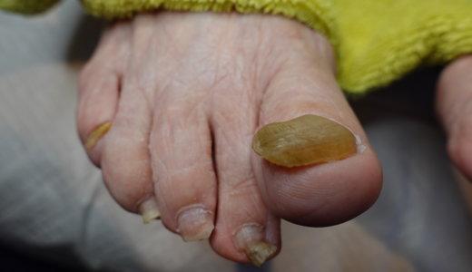 肥厚爪ケアの事例31